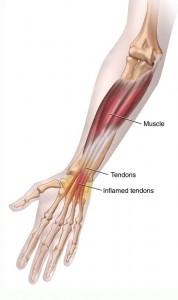 Wrist Pain Tendonitis